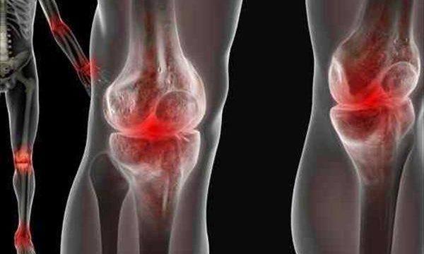 As infecções ortopédicas e suas interfaces na saúde