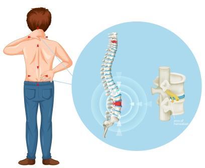 Você conhece as causas da hérnia de disco?