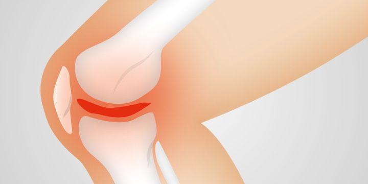 Como tratar uma lesão nos ligamentos do joelho